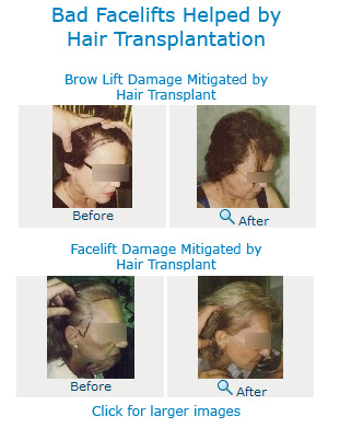 bad facelifts helped by hair transplantation