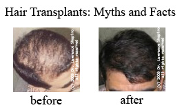 Hair Transplant Myths and Facts