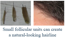 Small follicular units can create a natural-looking hairline